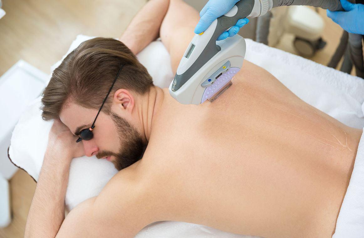 Männer Haarentfernung mit Laser Klagenfurt